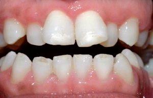 Behel Untuk Gigi Berjejal